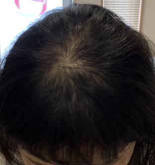 40代女性:3ヶ月経過