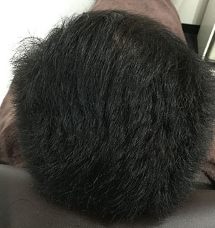 Y・K様(40代男性):6ヶ月経過