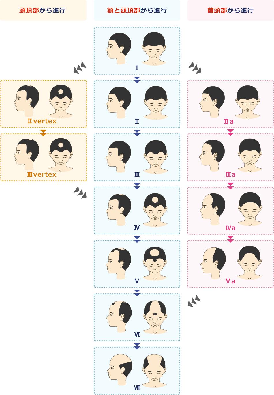 頭皮レベル(進行度)のタイプ(男性)