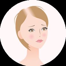 女子男性型脱毛症(FAGA)